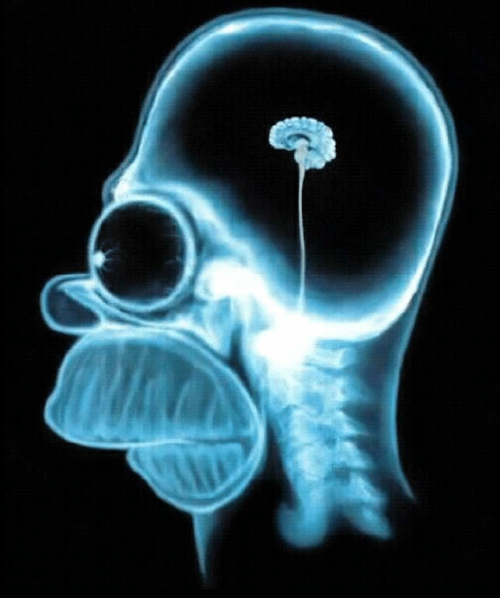Homer-Simpsons-brain-seen-with-MRI-X-ray-Image-reproduced-on-many-Internet-sites.ppm.png
