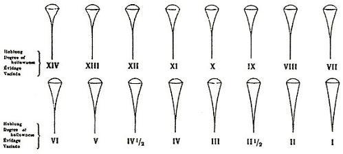48278d1283587230-grinds-henckels-chart.jpg