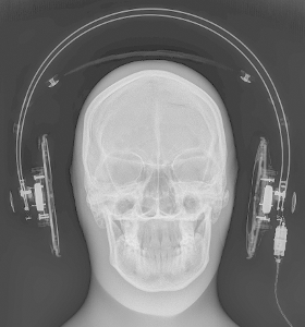 The dark side..of headphone radiography. This is one of two images, this one set to optimally...